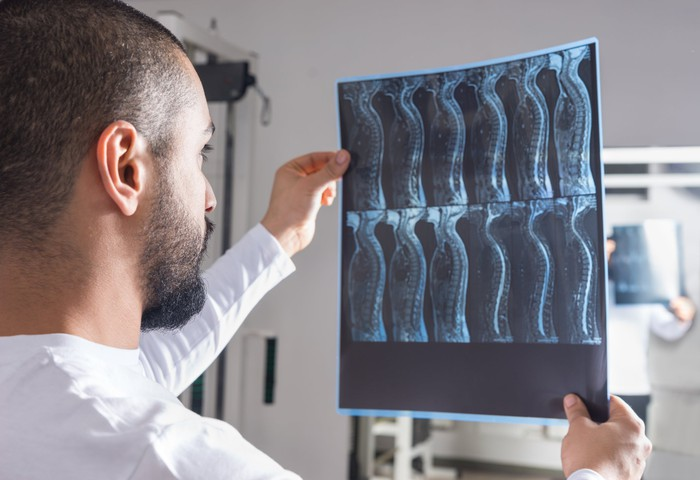 A doctor evaluating x rays of a spine.