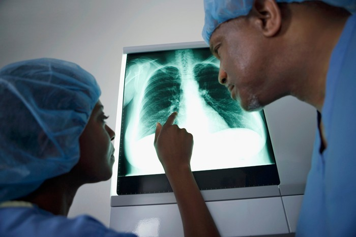 Surgeons examining a chest X-ray.