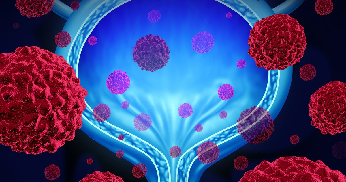 Roche's Tecentriq Fails to Help Patients in Muscle-Invasive Bladder Cancer Trial