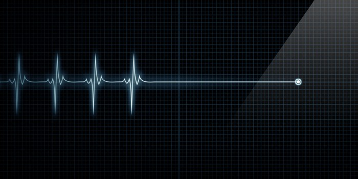 EKG image, indicating the end of heart beats.