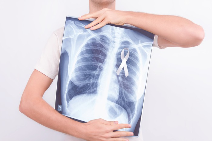 A person holding an x-ray of their lungs with a cancer ribbon on it.