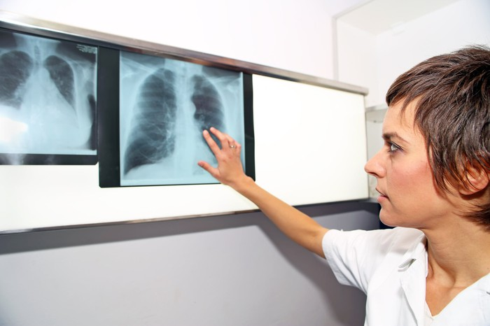 Doctor inspecting an X-ray of a person's lungs.