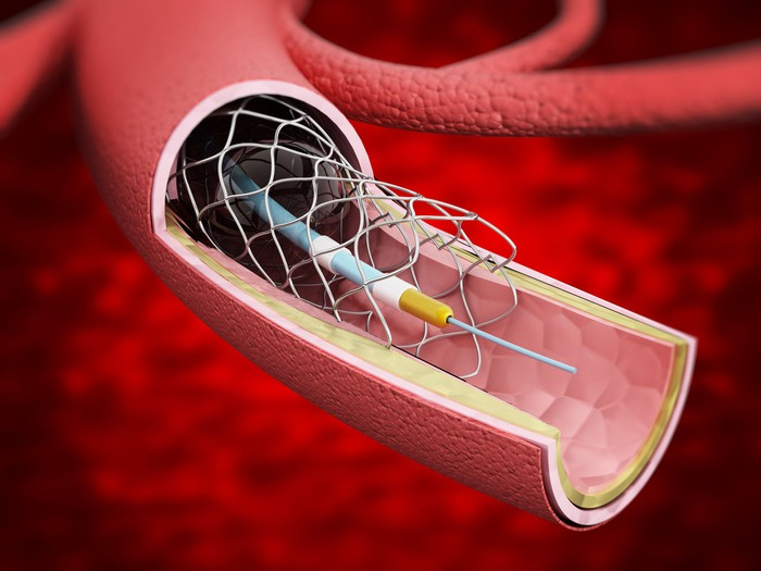 Depiction of a stent mesh being inserted inside an artery.