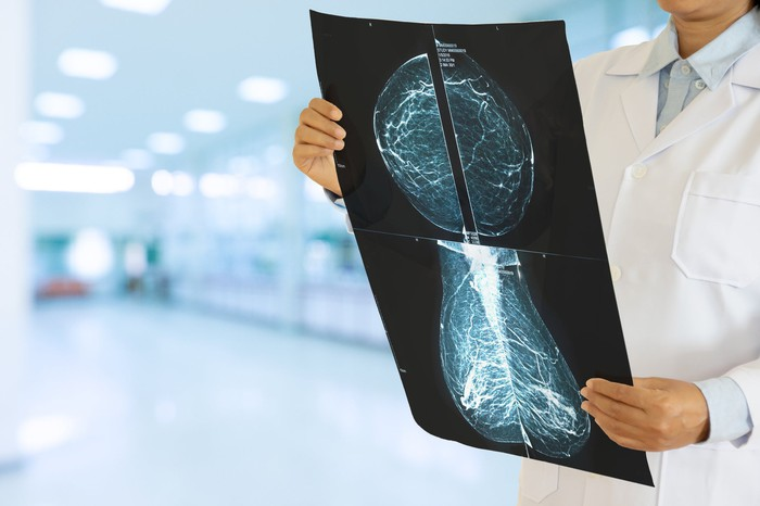 A female gynecologist inspecting a mammogram in a hospital.