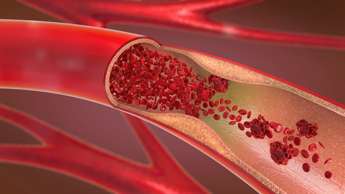 A picture of a blood vessel with plague slowing down the flow of red blood cells.