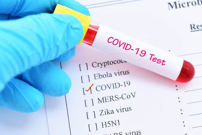 A COVID-19 blood sample