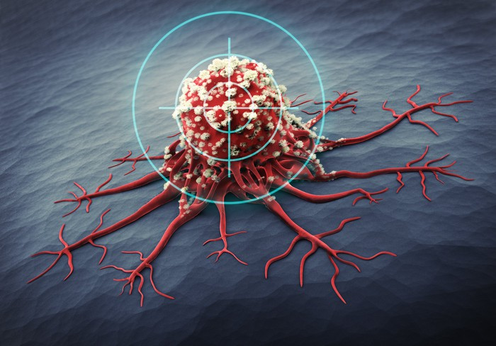 A target hovers over a spreading cancer cell.