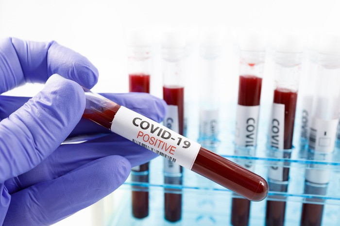 The gloved hand of a researcher is shown holding a positive COVID-19 blood sample.
