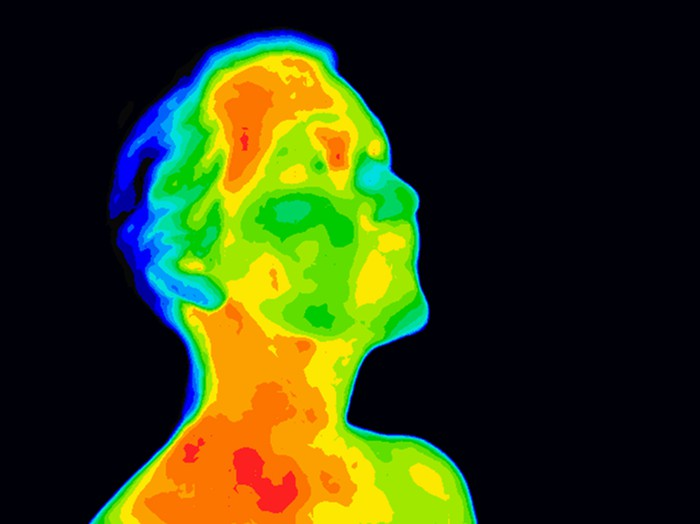 A thermographic image of a man's head and shoulders.