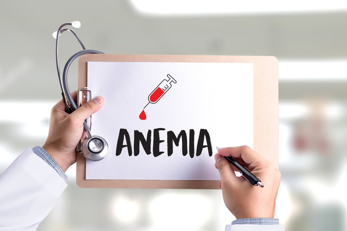 "Left hand holding a stethoscope and a clipboard with a drawing of a syringe dripping blood and the word ""anemia"" with the right hand holding a pen"