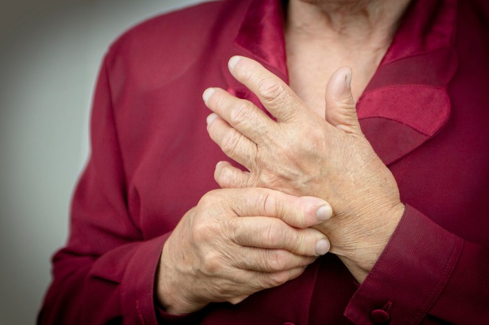 Person holding their swollen hands