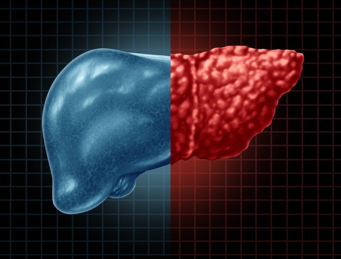 A human liver illustrating the difference between a healthy liver and a fibrotic one.