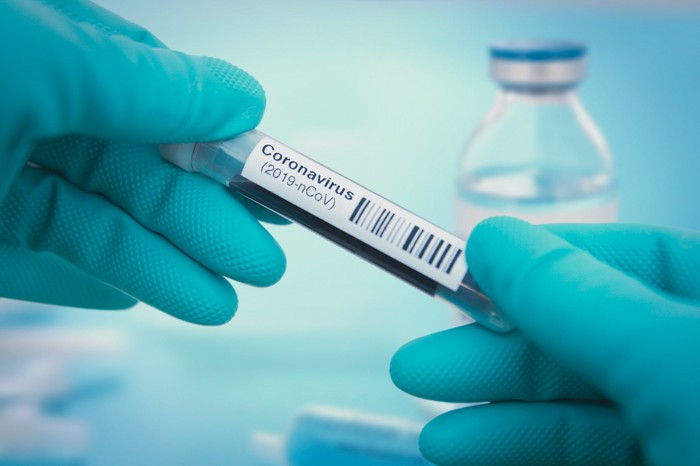 """Scientist holding a vial that's labelled """"coronavirus."""""""