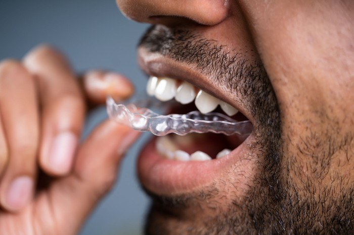 A man inserting an aligner into his mouth.