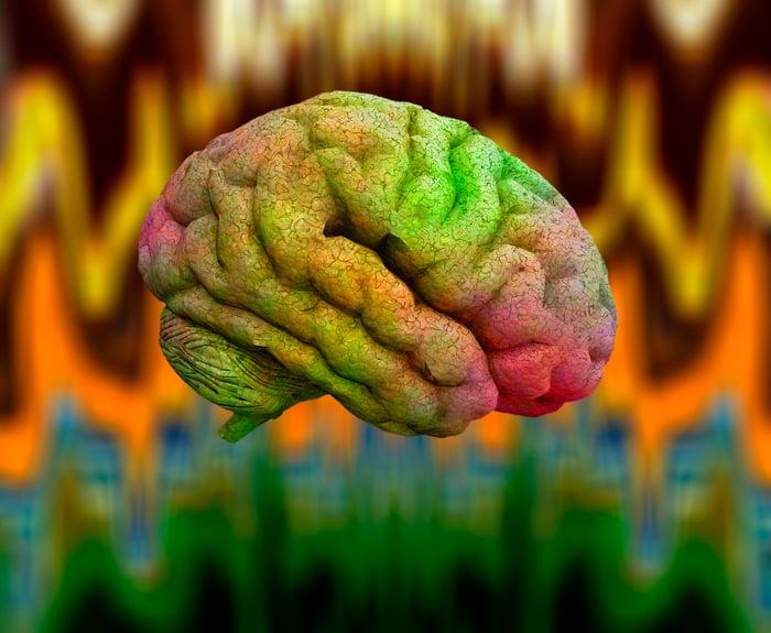 A multi-colored human brain.