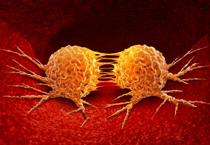 Two cancer cells dividing.