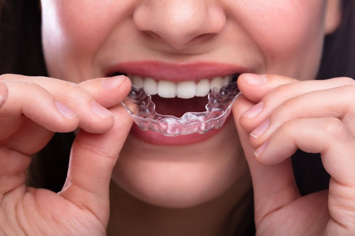 A woman putting clear teeth aligners in her mouth.