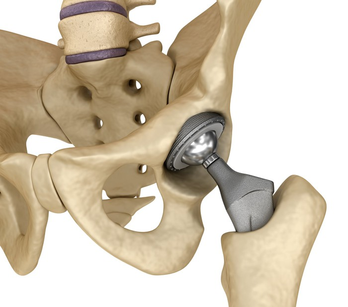 Hip replacement implant