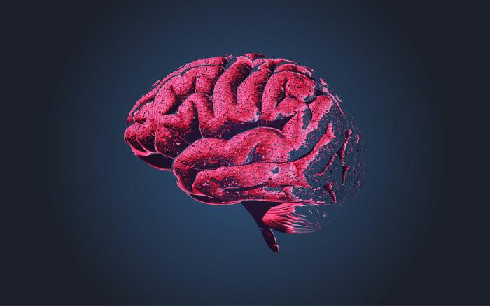 An image of a damaged human brain.