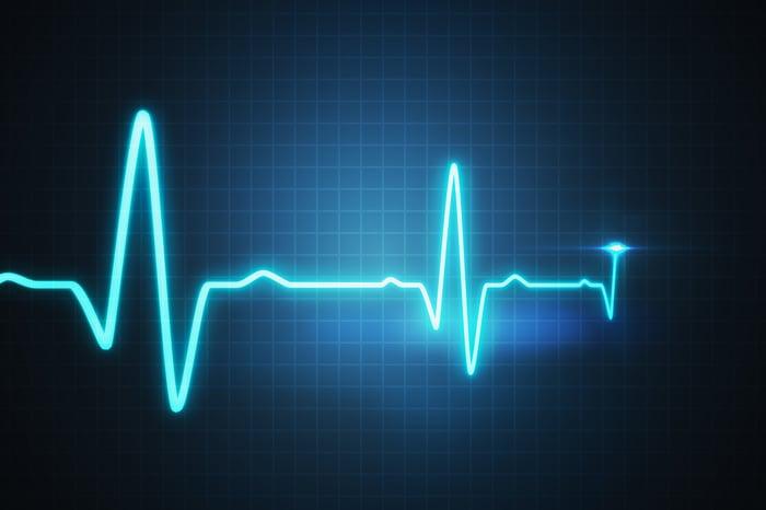 Electrocardiagram line