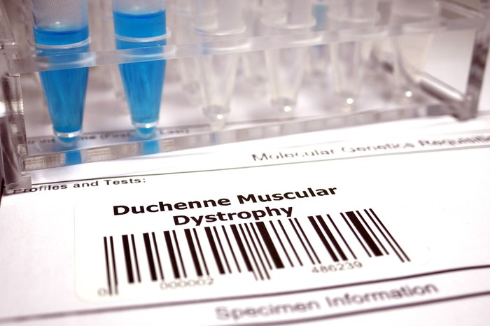 Duchenne muscular dystrophy printed over a bar code with pipettes behind the bar code label
