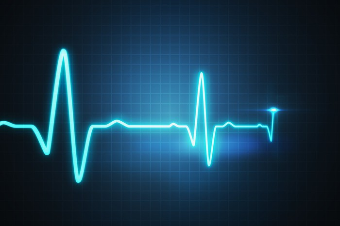 Cardiac monitor chart