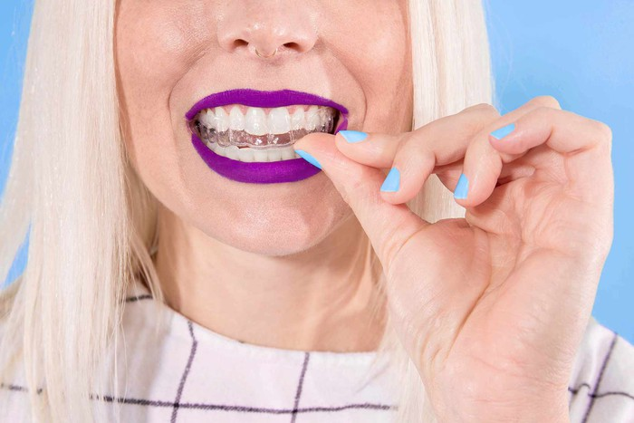 A woman putting on clear dental aligners.