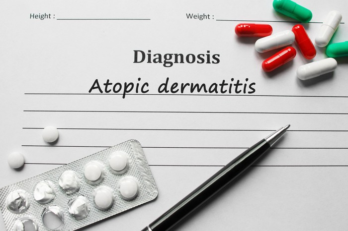 Document with atopic dermatitis printed underneath a Diagnosis heading with several pills and a pen on top of the document.