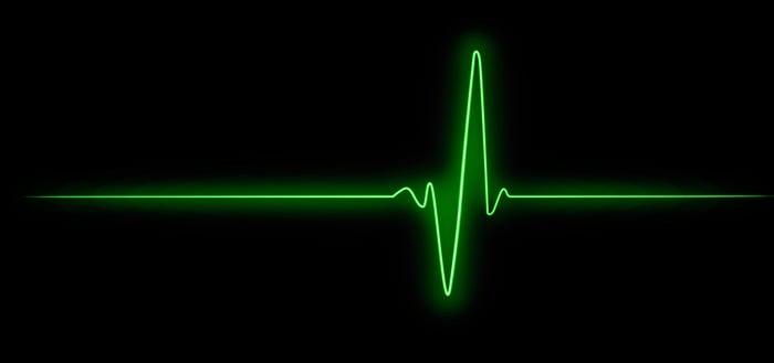 Green line heart monitor shows a big jump.
