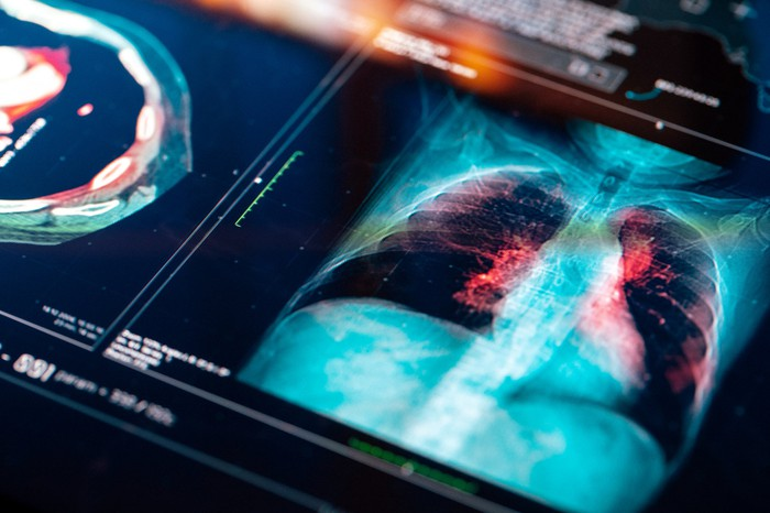Computer image of a lung x-ray.